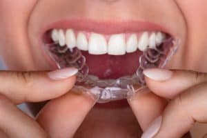 Person Inserting SmileDirect Aligner