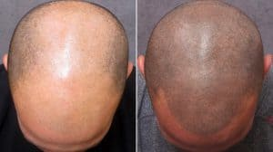 Before and After Photos of Balding Scalp and Hair Micro Tattoo