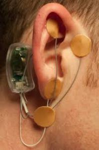 Neuro-Stim System, or NSS, Installed on Ear